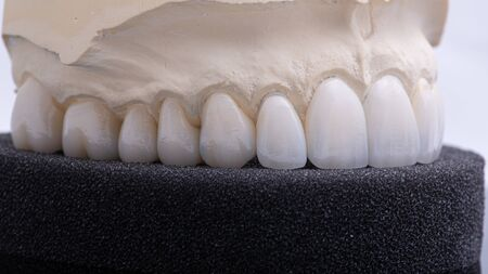 Implan model tooth with implan and crown.