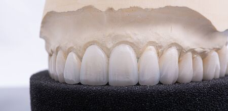 Dental crowns. Close-up ceramic tooth crown on a plaster model. The work of a dental technician.