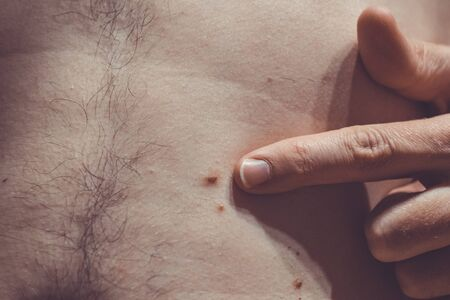 Melanocytic nevus, some of them dyplastic or atypical, on a caucasian man of 37 years old from Spain Stock Photo