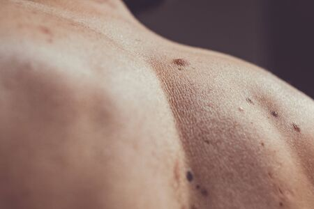 Melanocytic nevus, some of them dyplastic or atypical, on a caucasian man of 37 years old from Spain Stok Fotoğraf