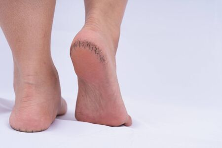 Close-up of dry and cracked heel with black bad skin on white background. Medical, healthcare for advertising concept.