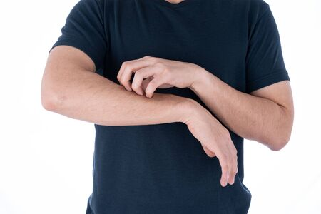 Male scratching his arm on isolated white background. Medical, healthcare for advertising concept.