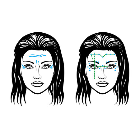 mimic: Illustration scheme of mimic wrinkles and scheme of injection points on a woman Illustration