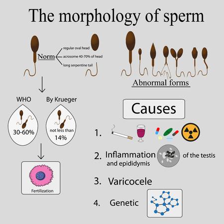 Infographics sperm morphology. Sperm morphology norms. Causes of poor morphology.