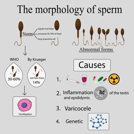 Infographics sperm morphology. Sperm morphology norms. Causes of poor morphology.