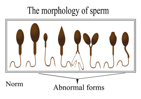 sex cell: The morphology of the sperm. Normal and abnormal sperm structure.