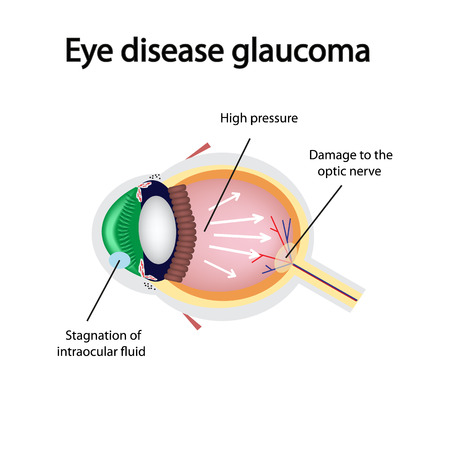 nerve damage: Glaucomatous eye. Violations causing glaucoma. The structure of the eye.