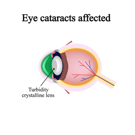 optic nerve: The structure of the eye. Eye cataracts affected. Violations occur when a cataract.