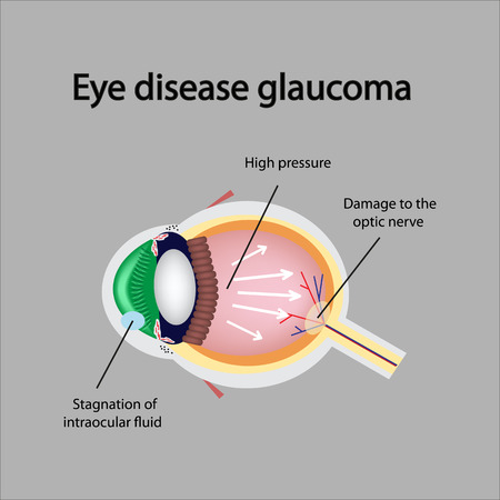 eye cross section: Glaucomatous eye. Violations causing glaucoma. The structure of the eye.