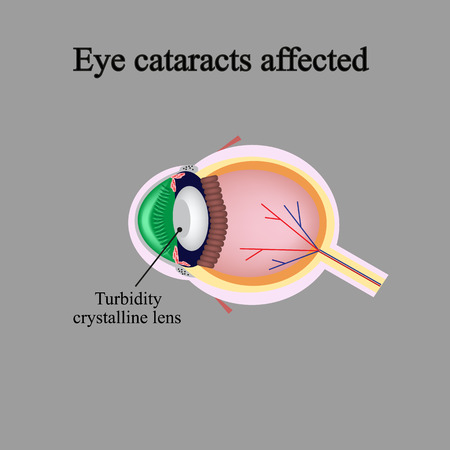 fovea: The structure of the eye. Eye cataracts affected. Violations occur when a cataract.