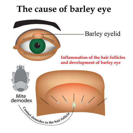 Diseases of the eye barley. Causes of barley. Demodex mite infestations. Inflammation volosyannoy bulbs. Illustration