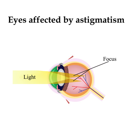 oculist: Impaired vision with astigmatism. As astigmatism affect vision.