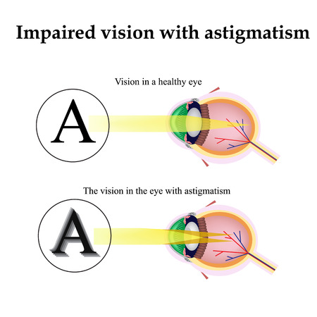 Astigmatism. As the eye can see with astigmatism. Impaired vision.