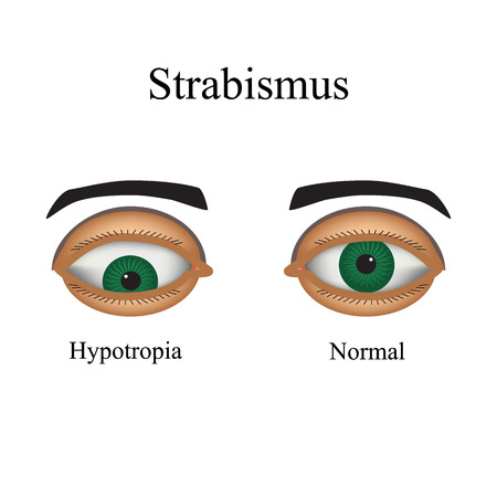 deviation: Diseases of the eye - strabismus. A variation of strabismus - Hypotropia.