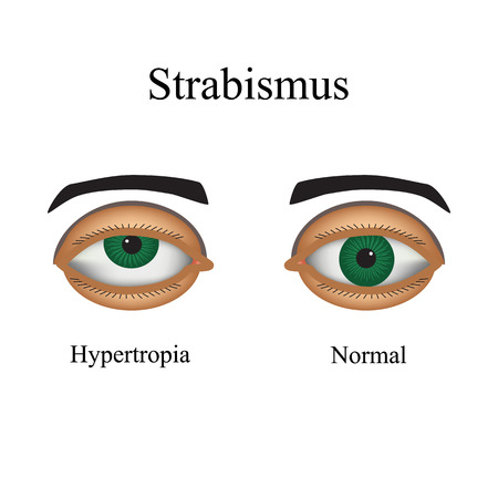 eye exam: Diseases of the eye - strabismus. A variation of strabismus - Hypertropia. Illustration