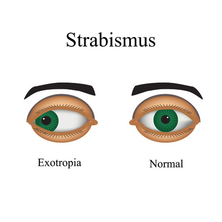 eye exam: Diseases of the eye - strabismus. A variation of strabismus - Exotropia. Illustration