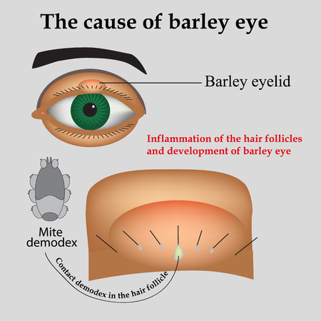 bulbar: Diseases of the eye barley. Causes of barley. Demodex mite infestations. Inflammation volosyannoy bulbs. Illustration
