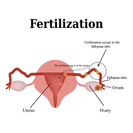 morula: Diagram of the structure of the pelvic organs. Fertilization. Vector illustration on isolated background.