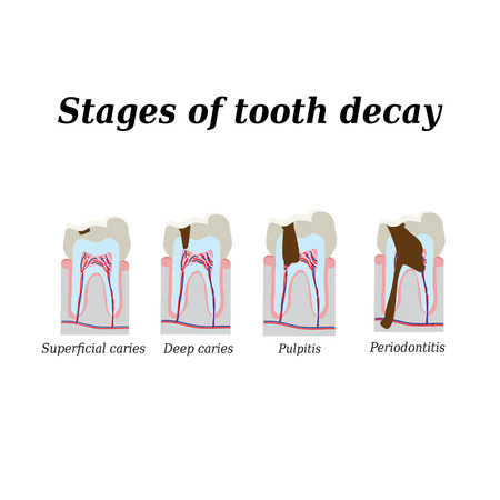 carious: Stages of development of dental caries. Vector illustration on isolated background.
