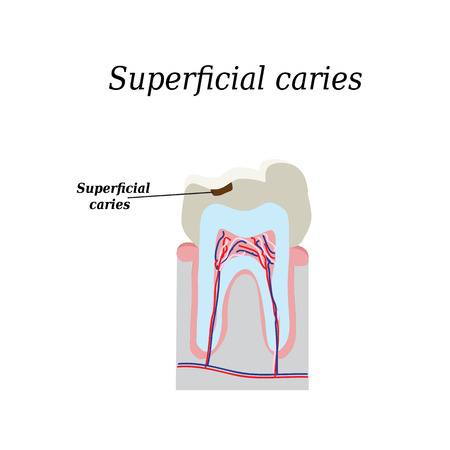 carious: Home tooth caries. Vector illustration on isolated background.
