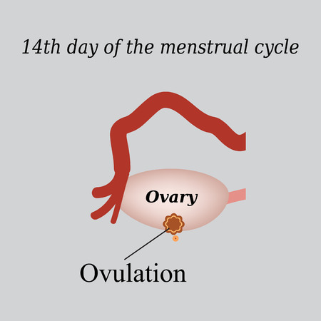 rupture: 14 day of  the menstrual cycle - ovulation. Vector illustration on a gray background.