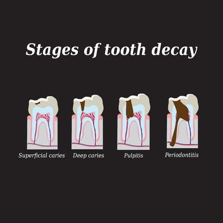 Stages of development of dental caries. Vector illustration on a black background. Ilustração