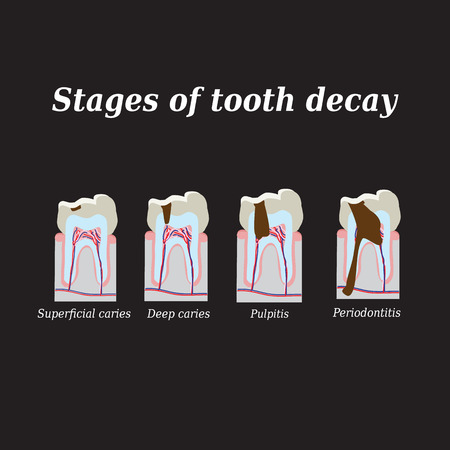 Stages of development of dental caries. Vector illustration on a black background. Illustration