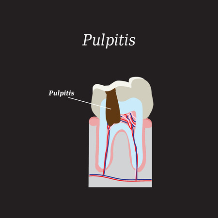 carious: Dental pulp. Vector illustration on a black background.