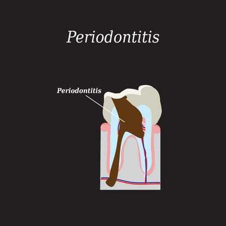 abscess: Periodontitis tooth. Vector illustration on a black background.