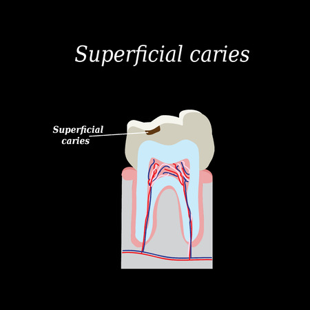 superficial: Home tooth caries. Vector illustration on a black background.