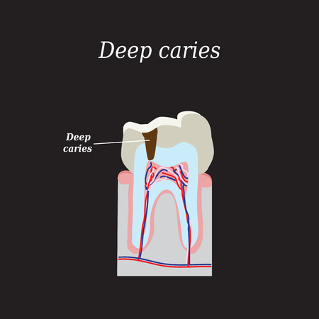 superficial: Deep tooth decay. Vector illustration on a black background. Illustration