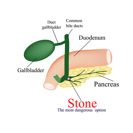 blockage: Stone pancreatic bile duct. The most dangerous rock. The gall bladder, duodenum, bile ducts. Vector illustration on isolated background.