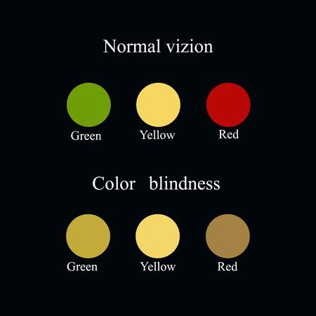 radiotherapy: Color blindness. Eye color perception. Vector illustration on a black background. Illustration