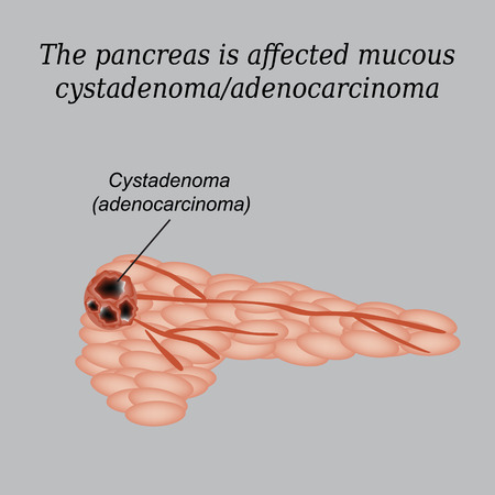 digestive disorder: Pancreas mucous cystadenoma, adenocarcinoma. Vector illustration on a gray background.