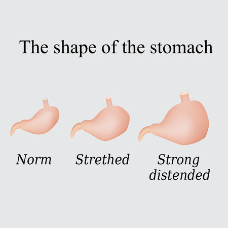 alimentary: Different forms of the stomach. Vector illustration on a gray background.