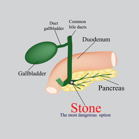 bile: Stone pancreatic bile duct. The gall bladder, duodenum, bile ducts. Vector illustration on a gray background.