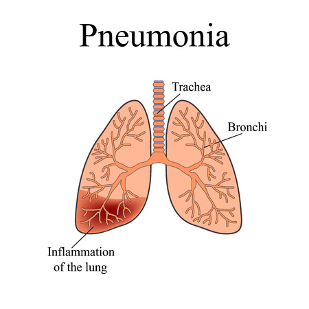 exhalation: Pneumonia. The anatomical structure of the human lung. Vector illustration on isolated background. Illustration