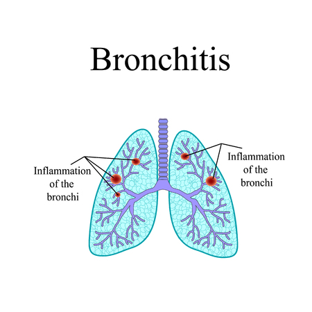bronchitis: Bronchitis. The anatomical structure of the human lung. Vector illustration on isolated background.