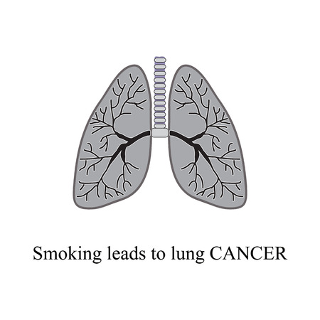 pulmonology: Smoking leads to lung cancer. Vector illustration on isolated background. Illustration