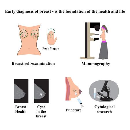 cancer de mama: Microscopio Negro. Ilustración del vector en el fondo aislado. Vectores