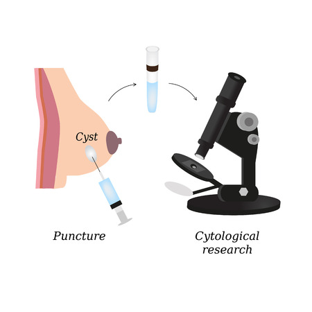 Puncture of cysts in the breast. Cytological analysis. Biopsy. Histological examination. Infographics. Vector illustration on isolated background.  イラスト・ベクター素材