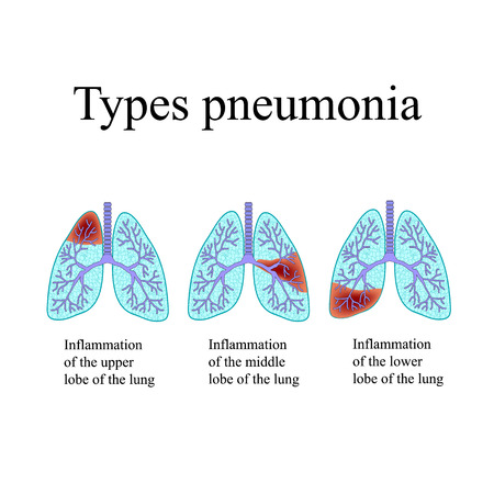 exhalation: Pneumonia. The anatomical structure of the human lung. Type of pneumonia. Vector illustration on isolated background.