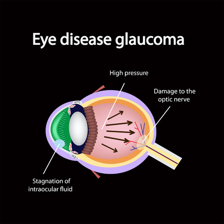 Glaucomatous eye. Violations causing glaucoma. The structure of the eye.