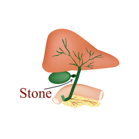 blockage: Stone bile duct. Gallbladder, duodenum, pancreas, bile ducts. illustration on isolated background. Illustration
