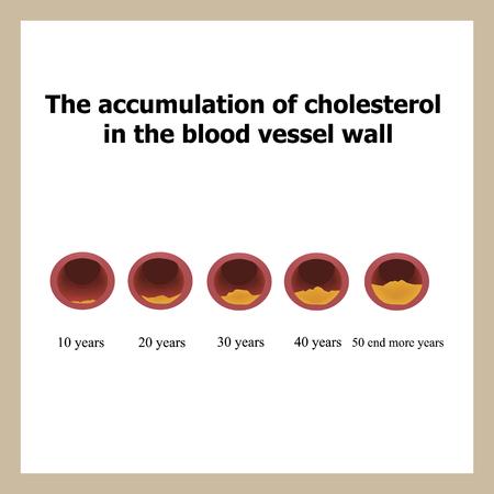 나이의 기능에 콜레스테롤의 증착.