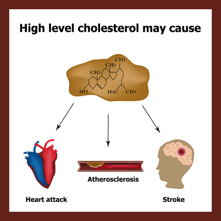High cholesterol causes - heart attack, stroke, atherosclerosis. Chemical formula cholesterol. Cholesterol plaques. Infographics.