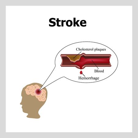 thrombus: Bleeding in the brain. Insult.. Stroke, atherosclerosis. Cholesterol plaques. Infographics.  Illustration