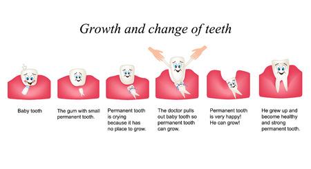 caries dental: Crecimiento y desplazar los dientes en los seres humanos. Etapas de desarrollo de los dientes. Los ni�os multiplekatsionny estilo. Infograf�a. Foto de archivo