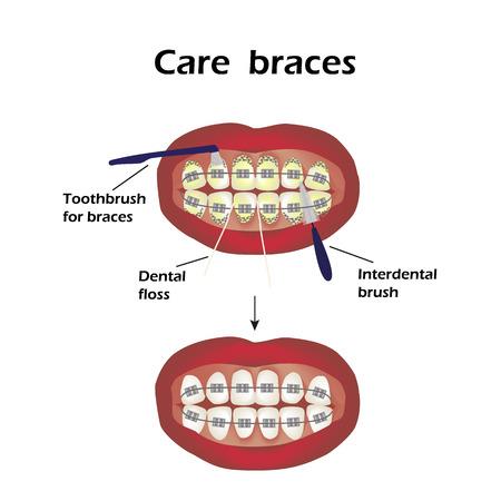 brush teeth: Care braces. Interdental brush teeth. Dental floss. Infographics. Vector illustration on isolated background.