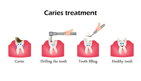 Treatment of caries. Drilling a tooth. Sealing of the tooth. Infographics. Vector illustration in cartoon style on isolated background.